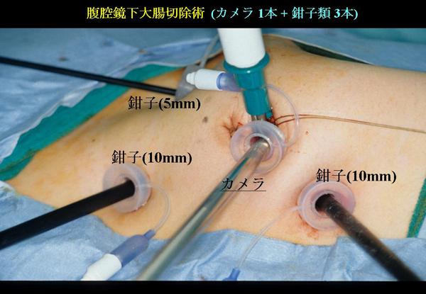 腹腔鏡の手術